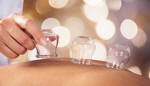 Curious About Cupping???