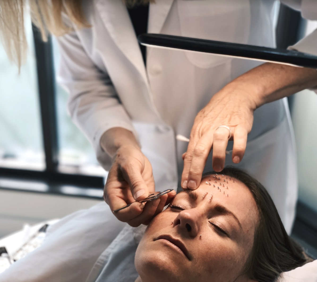 Facial acupuncture by Julie Nelson TCM